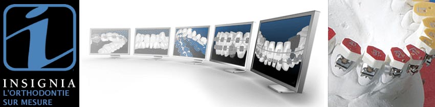 Insignia braces broches orthodontiste Lemay Sherbrooke