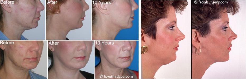 Lifting facial pour raffermir la peau du visage et éliminer un double menton.