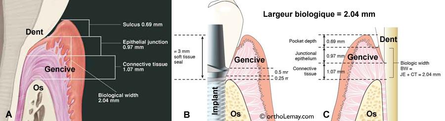 La largeur biologique autour d'une dent est essentielle pour faire une couronne dentaire adéquate