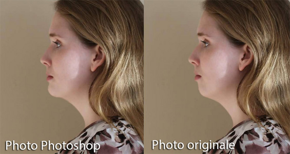 Simulation photographique photoshop d,une génioplastie pour avancer le menton.