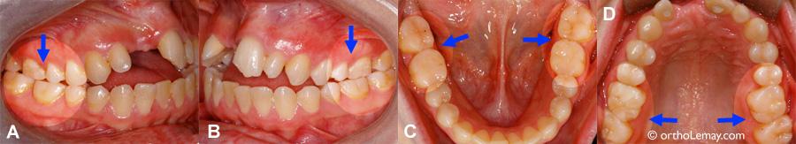Usure dentaire er bruxisme