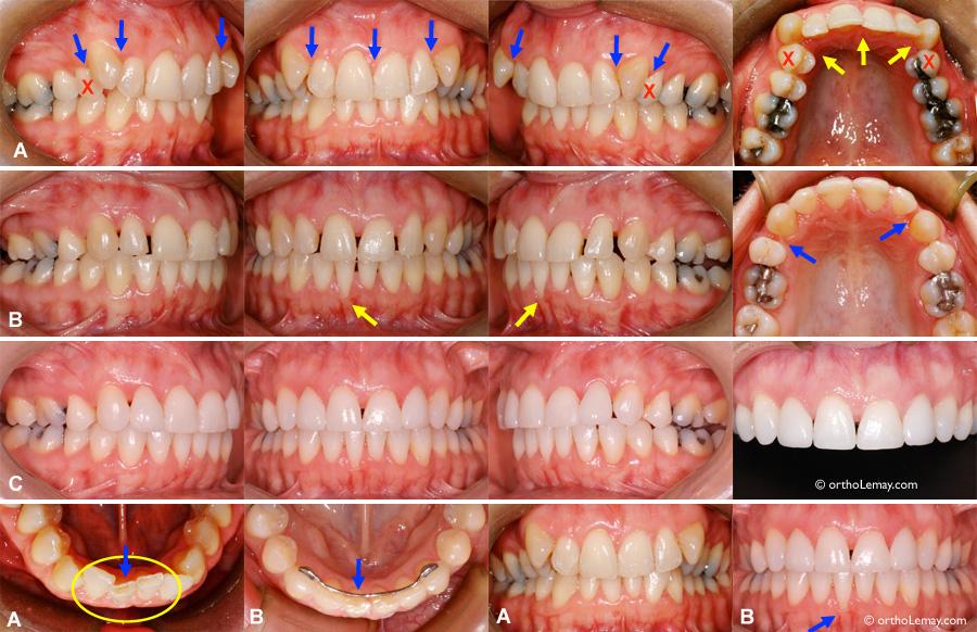 Correction de rotations dentaires en orthodontie et triangles noirs inesthétiques, perte de gencive.