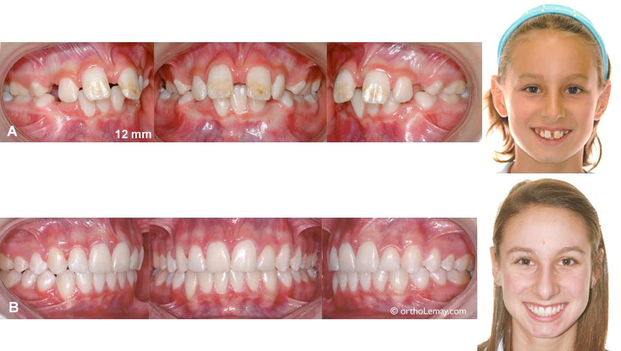 Sévère malocclusion CLasse 2 div 1 traitée en orthodontie