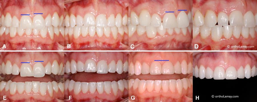 L'orthodontie permet de modifier la position des dents et le sourire.