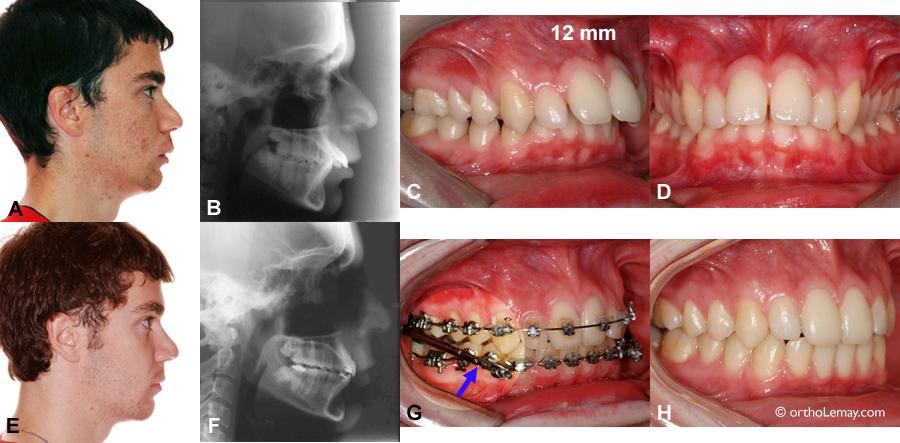 Utilisation d'un appareil orthodontique Herbst chez un adulte