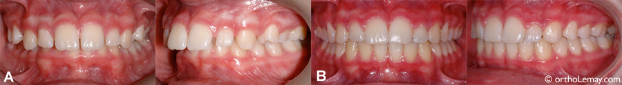 Malocclusion dentaire Classe 2 traitée en orthodontie
