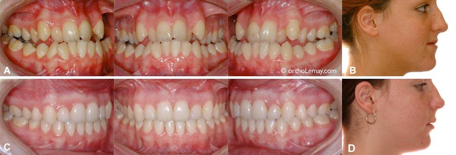 malocclusion CLASSE 3 traitée en chirurgie et orthodontie