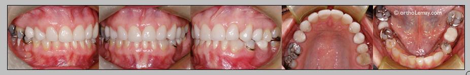 resaturations dentaires après l'orthodontie