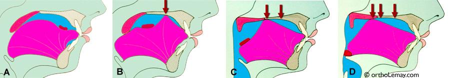 Péristaltisme de la langue pendant la déglutition.
