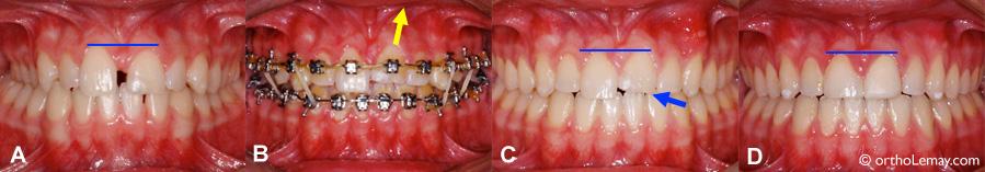 Mouvements orthodontiques utilisés pour aligner 2 dents inégales.
