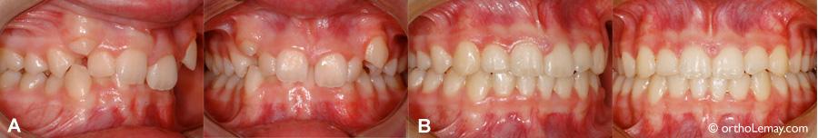 Correction orthodontique d'une malocclusion dentaires classe 2