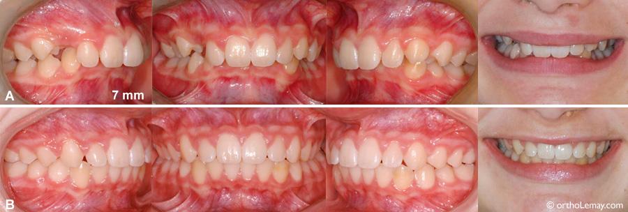Correction d'une classe 2 en orthodontie