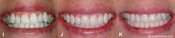Sourire gingival corrigé par l'orthodontie et des facettes