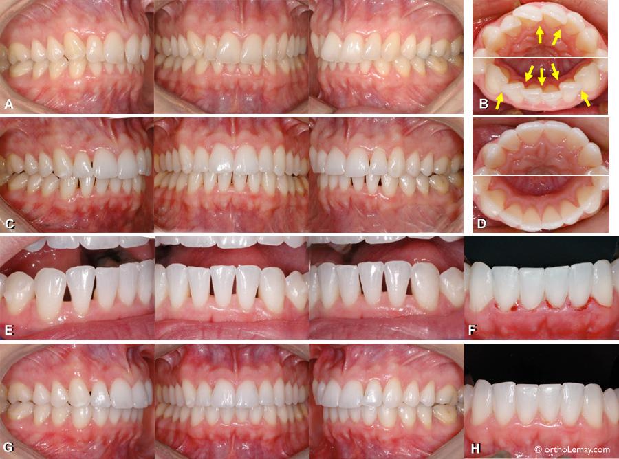 La correction de rotations dentaires en orthodontie peut causer l'apparition d'espaces triangulaires inesthétiques entre les dents mais des solutions existent pour corriger ce problème.