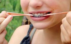 Le xylitol est un sucre ayant des propriétés anti caries dentaires (anticariogène) et est présent dans la gomme à mâcher mais ne présente pas d'avantage en orthodontie. Orthodontiste Lemay Sherbrooke orthodontie orthosherbrooke orthoLemay.com orthodentie orthodentiste orthodontist