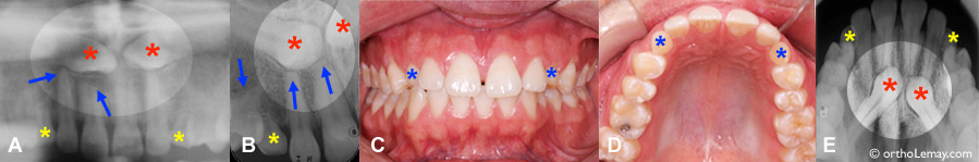 Palatally impacted canines and dental resorption, malocclusion