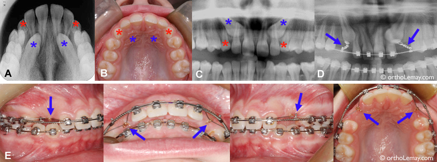 Impacted canines and orthodontic traction