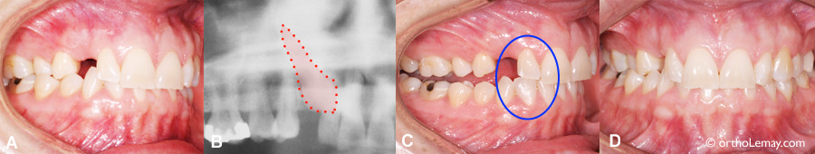 Palatally impacted canine, tooth wear and malocclusion
