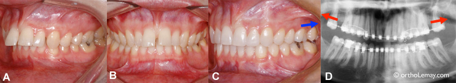 Mécanique orthodontique de distalisation chez un adulte