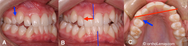 Extraction contributing to a dental malocclusion