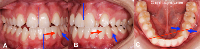 Extraction of a tooth to correct a malocclusion.
