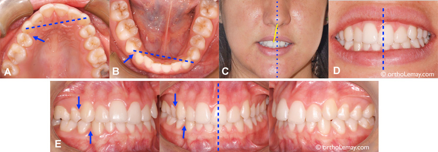 Facial asymmetry and dental extractions, malocclusion