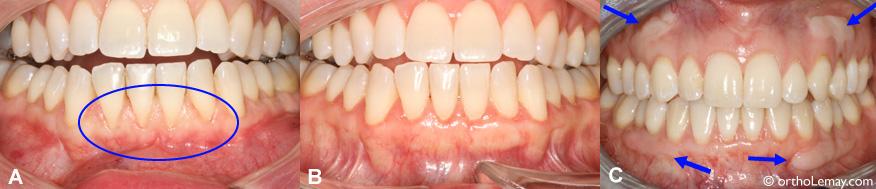 Greffe de gencive (gingivale) antérieure inférieure