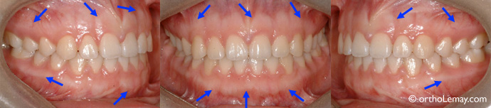Parodonte, gencive et dentition normaux. Orthodontiste Lemay Sherbrooke