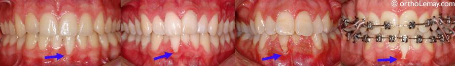Récession gingivale et orthodontie