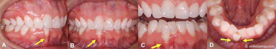 Relation entre une malocclusion et le parodonte