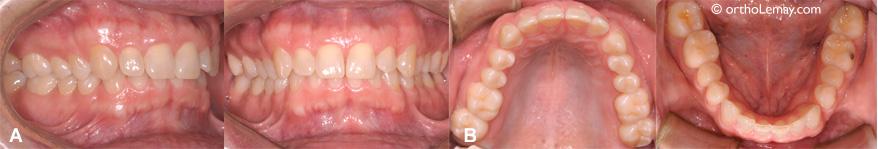 Serrement de dents chez un adulte avec usure dentaire modérée