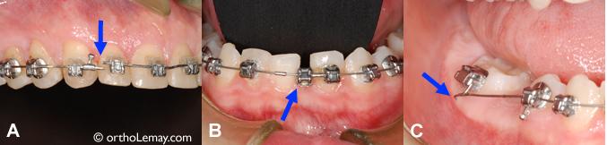 Exemples de problèmes et urgences orthodontiques.