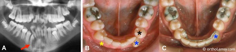 Extraction de canines incluses pour l'orthodontie