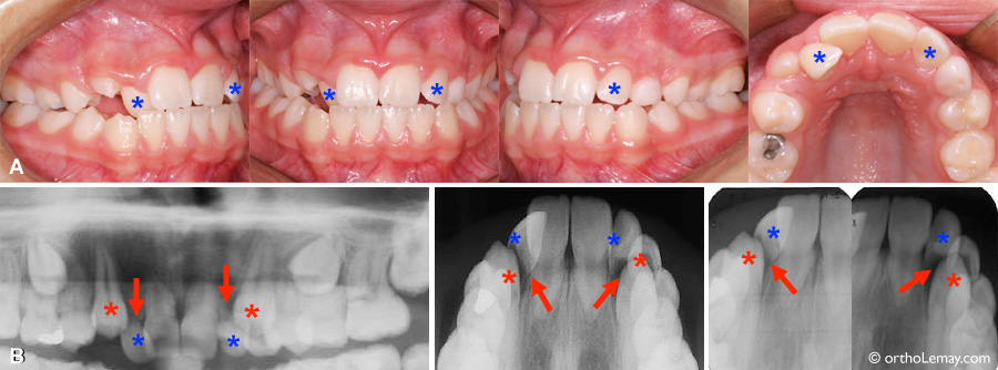 Severe resorption of lateral incisors by impacted canines at 12 years of age