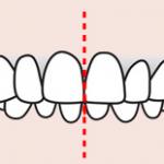 Dental midline.