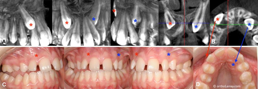 Canine incluse et diagnostic radiologique averc CBCT / tomodensitométrie volumique à faisceau conique (TVFC) en orthodontie