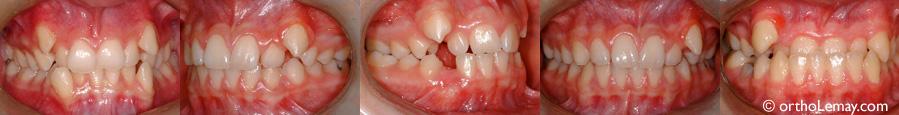 Ectopic cuspids orthodontics