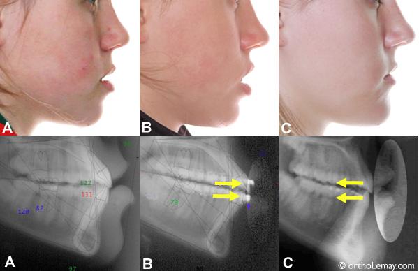 Influence des extractions sur le profil en orthodontie