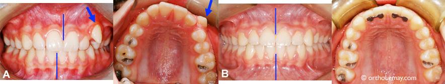 Malocclusion dentaire avec canine ectopique et chevauchement.