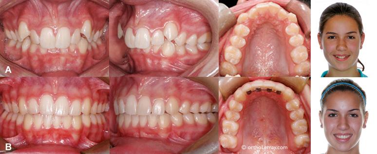 Correction malocclusion classe 1 avec chevauchement en orthodontie