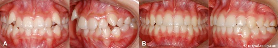 Malocclusion dentaire classe 1 avec chevauchement corrigée en orthodontie