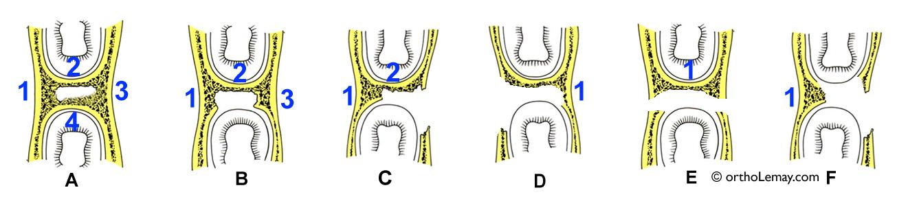 Anatomie des défauts osseux verticaux en parodontie. Osseous vertical bony defect anatomy. Orthodontiste Lemay Sherbrooke orthodontie orthosherbrooke orthoLemay.com orthodentie orthodentiste orthodontist