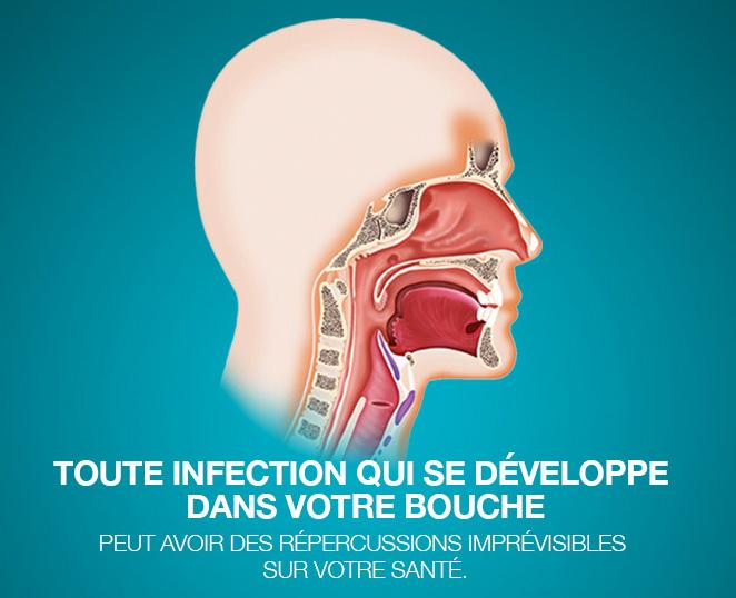 Les maladies parodontales peuvent avoir un impact sur la santé globale et contribuer à plusieurs maladies (grossesse, maladies cardiaques, pulmonaires, diabète).