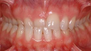 Occlusion croisée déviation mandibulaire