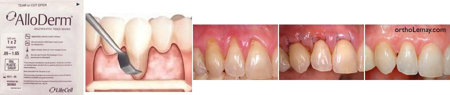 Matrice tissulaire régénératrice AlloDerm utilisée en parodontie pour différents usages oz il manque de la gencive