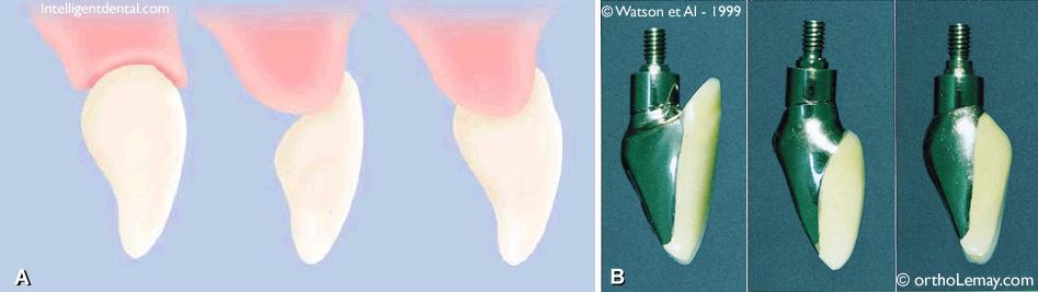 Design couronne dentaire sur pont et implant dentaire.