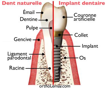 Comparaison entre une dent naturelle et un implant dentaire.