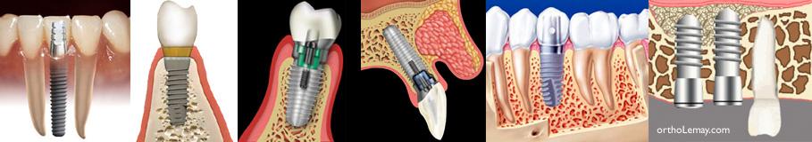 Position des implants dentaires dans l'os alvéolaire