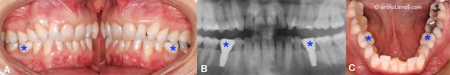 Implants dentaires posés avant un traitement d'orthodontie