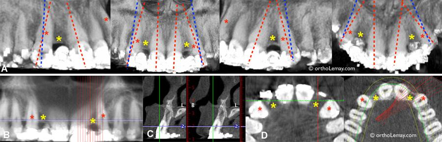 Position inadéquate de racines pour la pose d'implants dentaires